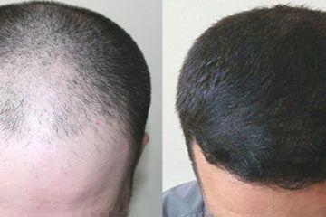 trapianto-capelli-turchia